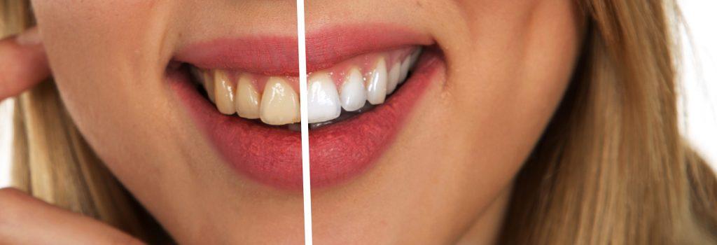 Dents blanches avec bicarbonate de soude
